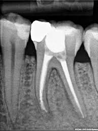 after-root-canal-expert-info-03
