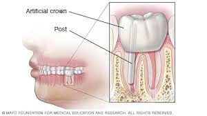 top-nyc-dentist-root-canal-specialist-post-root-calan-info-01