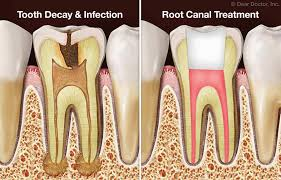 what-is-root-canal-general-info-02