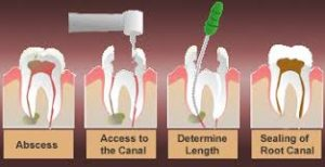 graphic-of-root-canal-steps-02