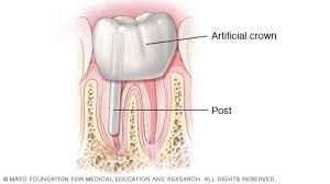 crown-post-root-canal-steps-03