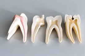 different-parts-teeth-root-canal-information-midtown-dentist-02