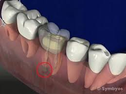 faulty-broken-crown-root-canal-03