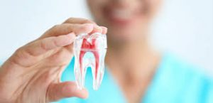 model-tooth-root-canal-general-info-03