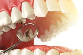 reasons-for-root-canal-cracked-damaged-teeth-02
