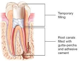 root-canal-procedure-diagram-nyc-dentist-01