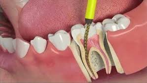 root-canal-procedure-graphics-top-nyc-specialist-01