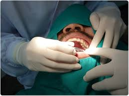 root-canal-procedure-pic-03