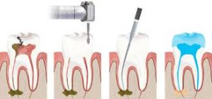 root-canal-stages-steps-faq-info-endodontist-nyc-02