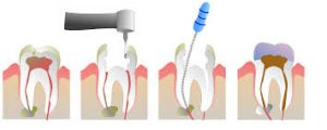 root-canal-steps-graphic-nyc-expert-dentist-02