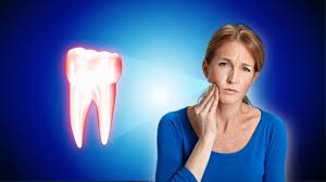 root-canal-women-pain-faq-info-02
