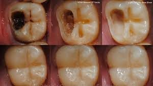 why-do-i-need-root-canal-01