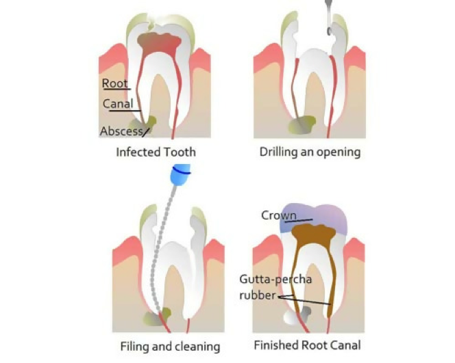 Dentist for failed root canal NYC