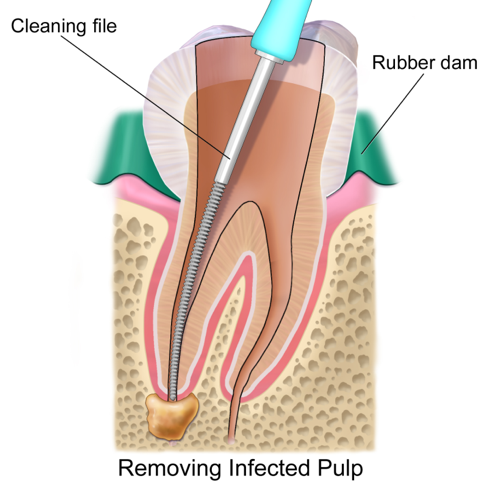 root canal process