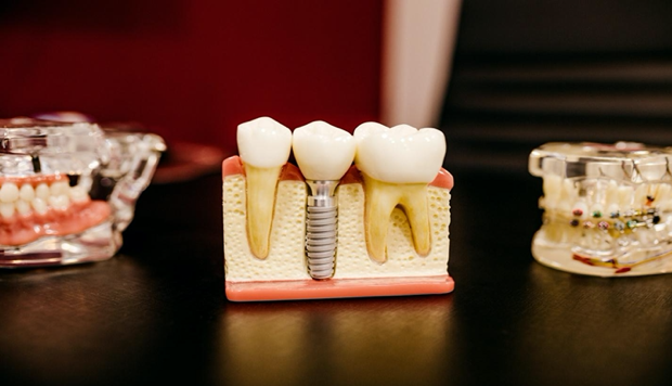 Root Canals and Tooth Age